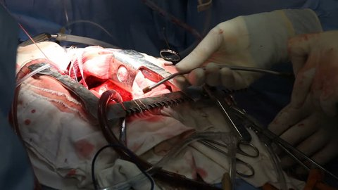 Heart surgery. Works in surgery. Coronary re implantation in ascending aortic aneurysm