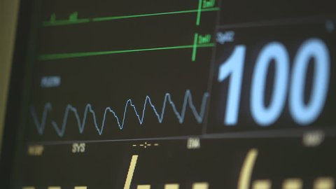 view  Monitoring of patient's condition, vital signs on ICU monitor in hospital