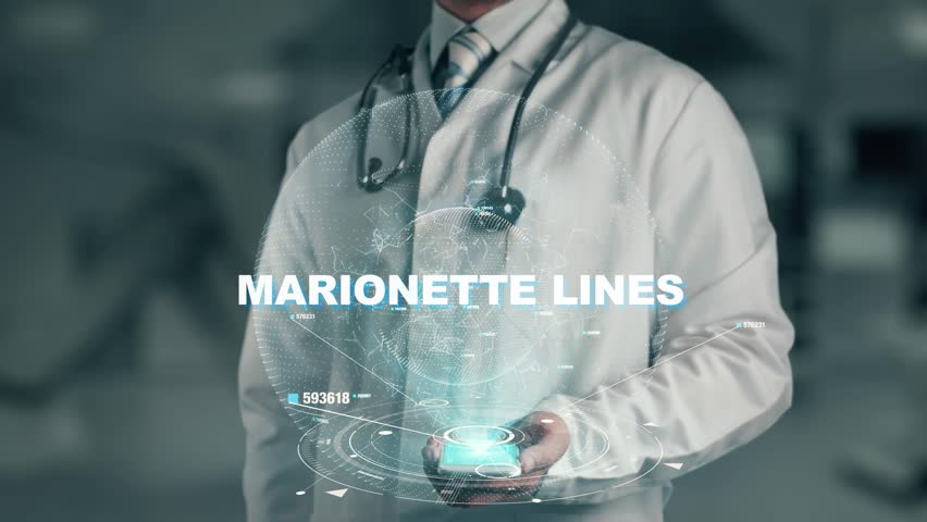 Doctor holding in hand Marionette lines