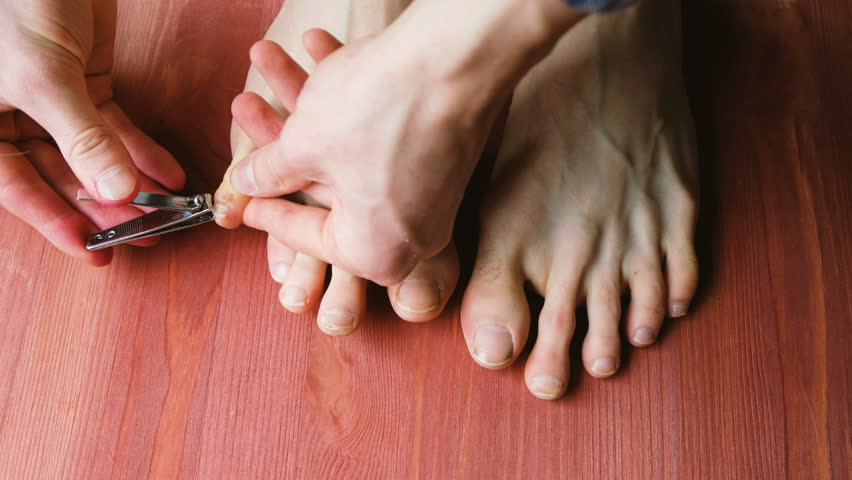 Long toenails Stock Video Footage - 4K and HD Video Clips | Shutterstock