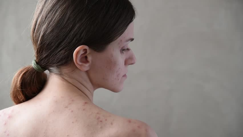 Beautiful young brunette girl with pimples and acne on her back and face | Shutterstock HD Video #1010286029