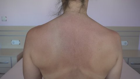 4K Back of woman who has beed diagnosed with scoliosis