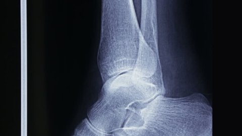 Lateral tracking on X-ray plate of tibia and fibula and of human foot bones