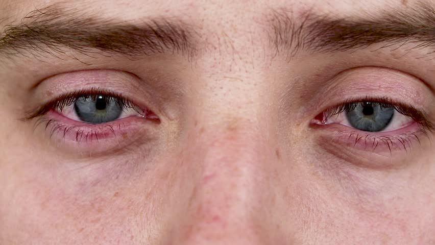 Close up of two annoyed red blood eyes of male affected by conjunctivitis or after flu, cold, allergy. Copy space for advertisement. Tired eyes after working at the computer. Close-up videos and macro | Shutterstock HD Video #1013359709