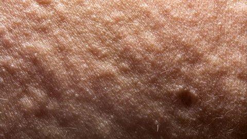 urticaria or allergy rash. dolly shot, sliding camera move.