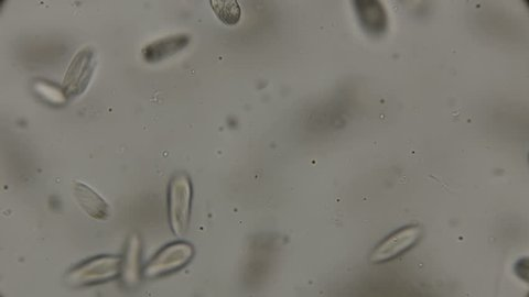 a large colony of Paramecium putrinum infusoria inhabiting waters with oxygen deficiency, under a microscope