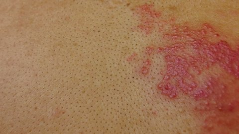 4k dolly shot, Herpes zoster skin disease caused by a virus that destroys the human nerve.