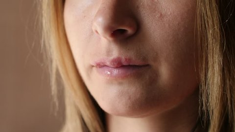 Woman touches the sores from herpes on her lips. Women's lip ulcers herpes closeup. Beautiful lips were covered with cold sores. The girl licks her lips covered with herpes.