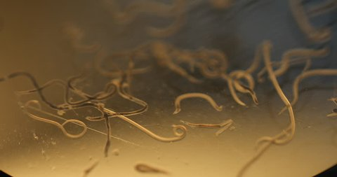 Ascariasis is a disease caused by the parasitic roundworm Ascaris lumbricoides for education in laboratories.