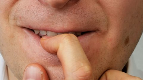 nervous man by teeth crunches his nail on finger, close up