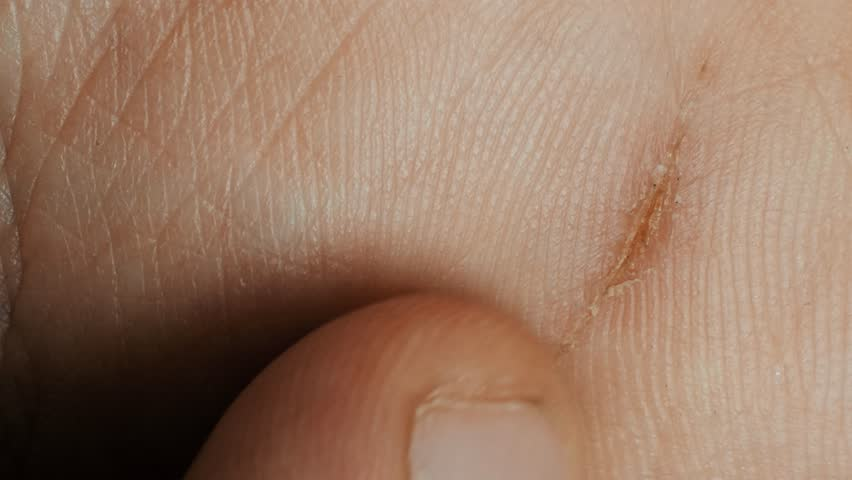 Withered wound on the skin of hand, macro | Shutterstock HD Video #1017902149