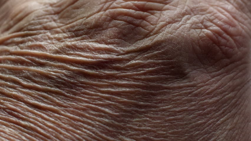 Close up of Senior's hands with Alzheimer disease | Shutterstock HD Video #1020057019