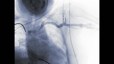 Percutaneous transluminal angioplasty or PTA  of the arteries of the arm in brachial artery and cerebral ischemia