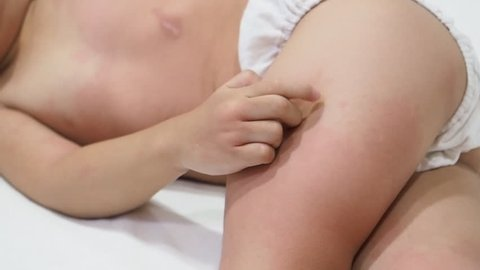 Child scratching with symptoms of itchy urticaria at legs.