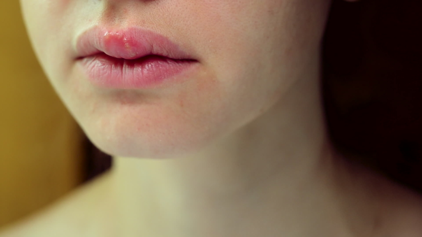 Herpes on the Upper Lip of a Young Woman. Medical Background of a Young Beautiful Woman with Herpes Labialis. Herpes Simplex Virus | Shutterstock HD Video #1030749329