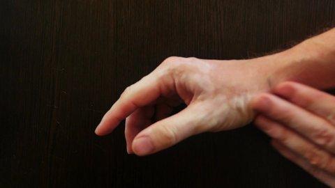 Close up of the hand with white spots on the skin of vitiligo treatment of  vitiligo smears the cream of vitiligo on the hand