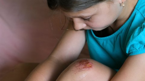 Wounded knee of the child, abrasions on the girl lap. close-up