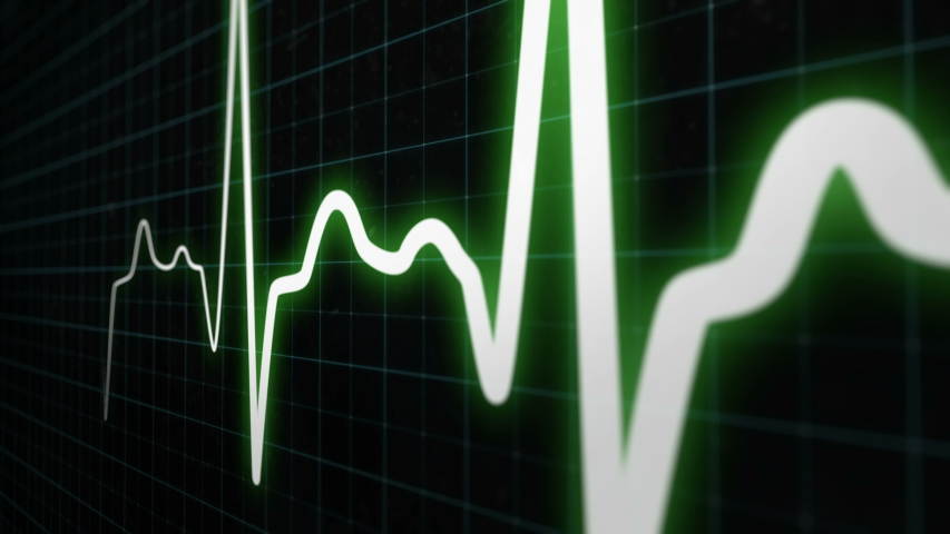 Heartbeat monitor line, seamlessly loop animation, white line graph of heart rhythm on medical screen with grid. ECG, EKG electrocardiogram shows heartthrob. More colors and options in my portfolio | Shutterstock HD Video #1037674619