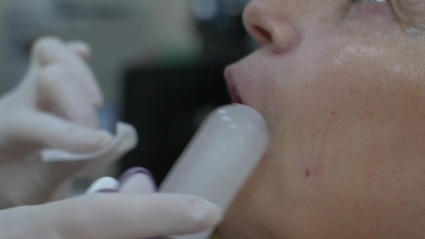 Cosmetic clinic, woman getting a Hyaluronic acid injection it is used to reduce the appearance of fine lines and wrinkles, facial folds, and to create structure, framework and volume of the lips | Shutterstock HD Video #1038761729