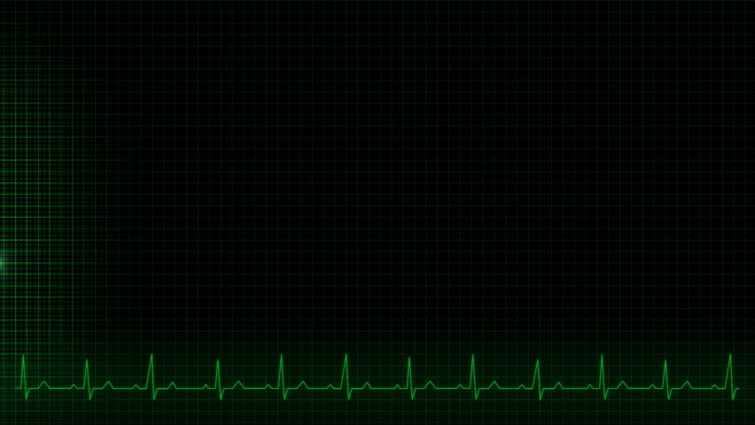 Illustration of a heartbeat impulse line