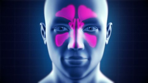 Nasal Sinus Infection Cured by Medicine. Frontal, Ethmoidal, Sphenoidal and Maxillary Sinuses. Sinusitis. 4k - Ultra HD.