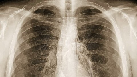 X-ray of chest covered with transparent skin. (loop ready file)