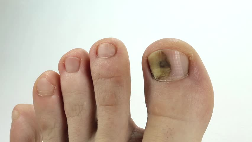 Toenails with Fungal Infection. Sick Stockvideos & Filmmaterial (100 ...