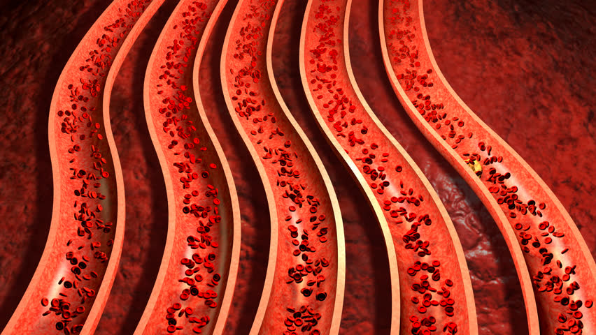 Clogged Artery with platelets and cholesterol plaque, concept for health risk for obesity or dieting and nutrition problems