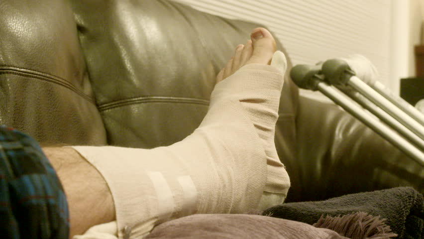 Putting Ice on a Broken Ankle, Fractured Foot With Compression Wrap