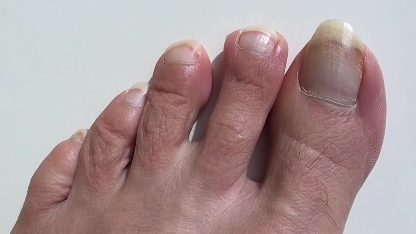 Stock video of bruise under the nail of big | 13464044 | Shutterstock