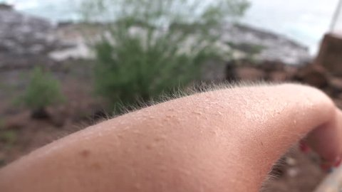 MACRO: Young Caucasian woman having chills on her skin on cold and windy summer day. Goosebumps on white female arm on freezing day by the seashore.