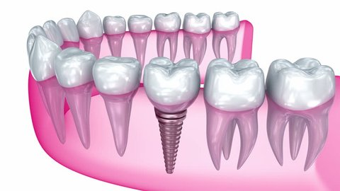 Tooth implant installation , Medically accurate 3D animation