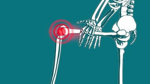 skeleton knee pain animation, 3D render
