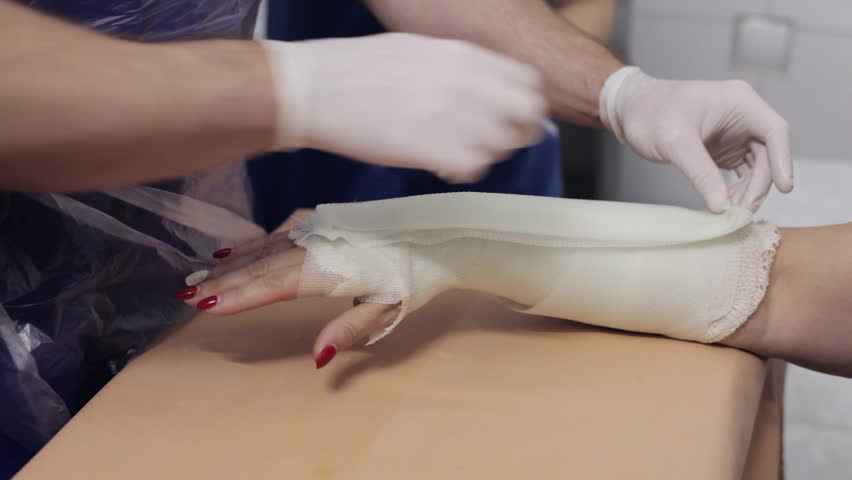 Close-up shot of doctor imposes gypsum on the hand of female patient