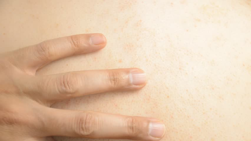 Health problem. Young woman scratching her itchy back with allergy rash