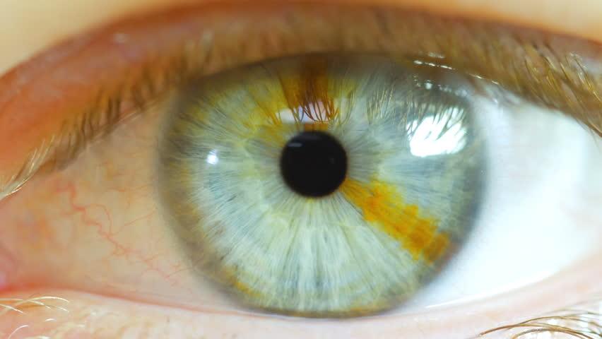 Human Eye Macro Close With Brown Birth Mark 2 #22346269