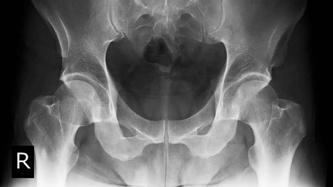X-ray lumbo-sacral spine, pelvis, hip joint