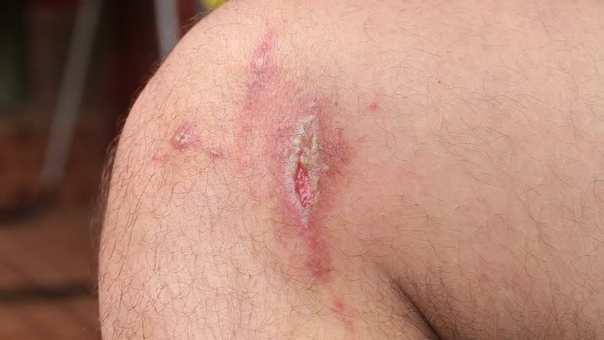 Irritant contact dermatitis at man leg, close up.. Pederus-dermatitis - Allergic reaction to the blood type of beetles Paederus, characterized by vesicular dermatitis | Shutterstock HD Video #22455649