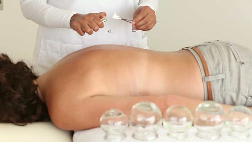 Alternative Medicine: Female Doctor Applying Suction Cups (Cupping)