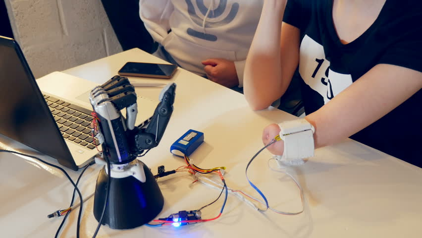 Young woman without arm using adjustable bionic prosthetic for the first time.