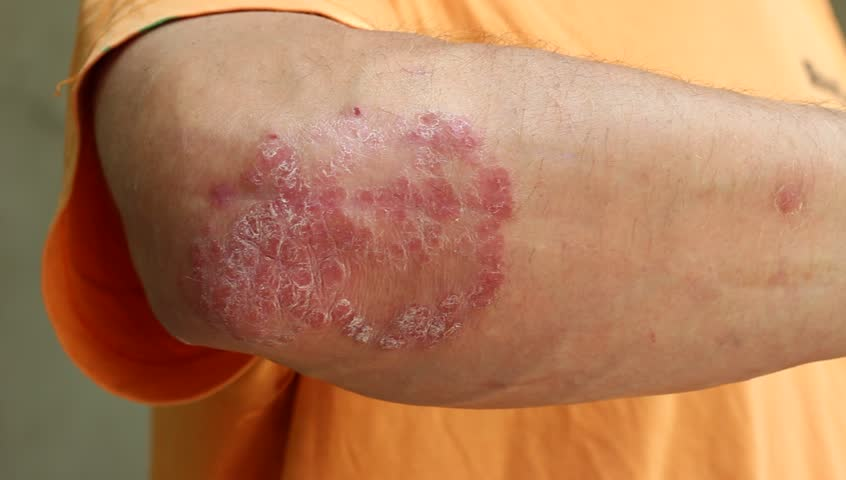 Patches of plaque psoriasis. The condition in flare-ups. The dry flakes of skin scales