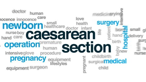 Caesarean section animated word cloud, text design animation.