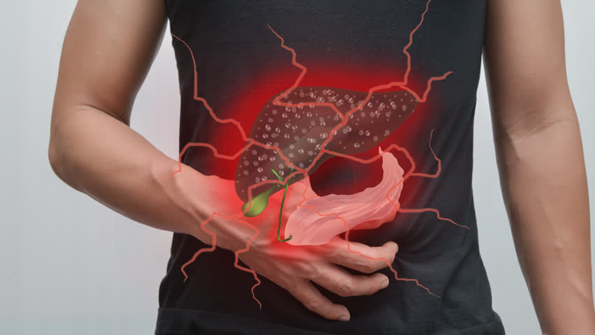 Animation (Video) Liver and pancreas infections Advertising for the treatment of liver disease - cancer.