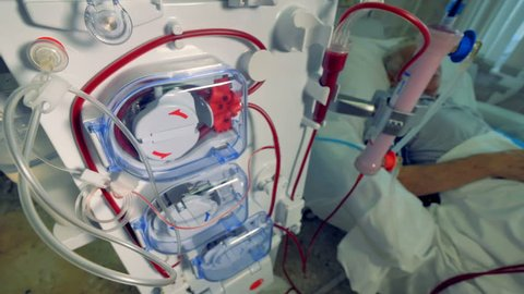 Patient during hemodialysis procedure. Modern dialysis machines making blood purification.