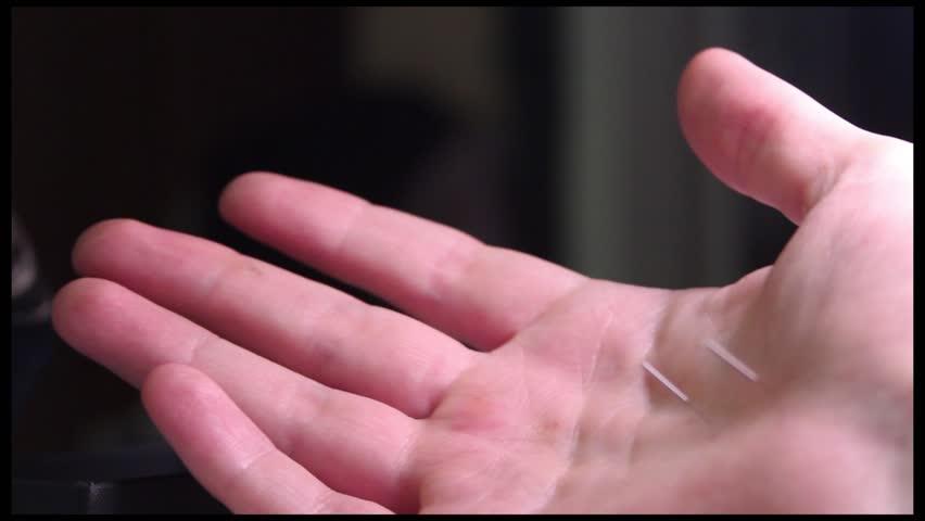 SuJok Acupuncture medicine: needles inserted in a hand.