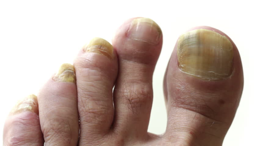 Toenails with common fungal infection. Shot with macro lens and shallow depth of field, white background.