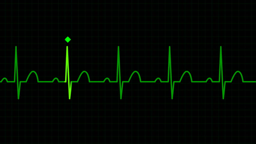 HD seamless loop physiologically accurate ECG EKG graph background. Electrical activity human heart.