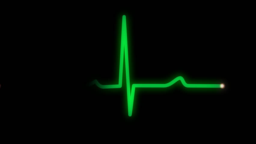 An animated heart monitor EKG line.  With sound and alpha matte.