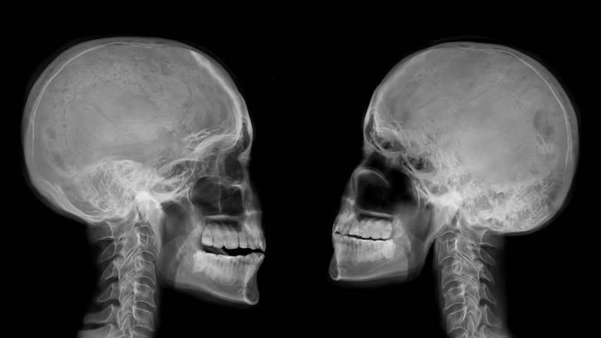 Head X-ray - Various Moves. Animation Of Moving Skull And ...