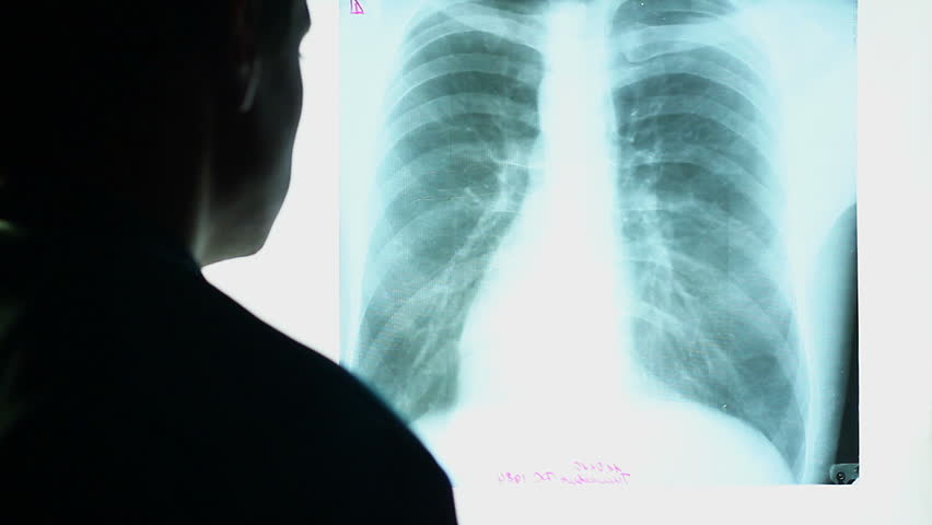 Doctor looking at X-ray image of human chest, scanning lungs. Man checking patient's roentgen scan in laboratory. Diagnostics for prevention of lung cancer. Healthcare, medical treatment of diseases